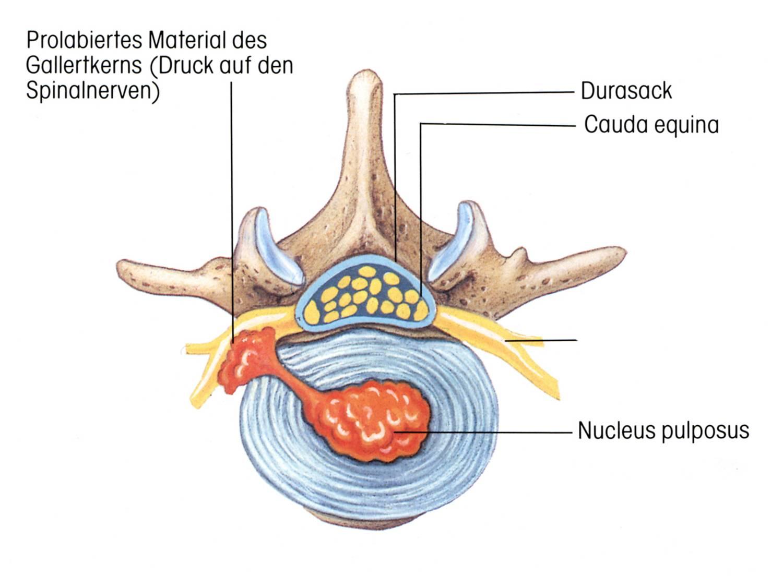 Bandscheibenvorfall, der auf den Spinalnev drückt